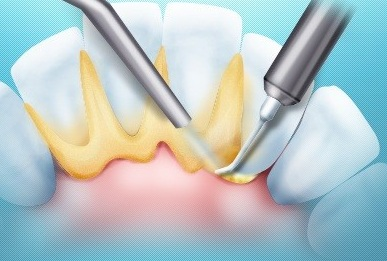Pulia dentale con ablatore