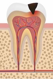 Disegno di un molare con carie in smalto e dentina