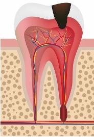 Disegno di un molare con carie in polpa
