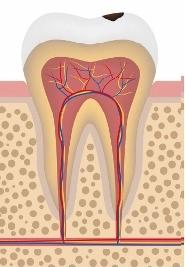 Disegno di un molare con carie iniziale in smalto