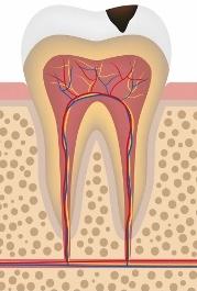 Disegno di un molare con carie in smalto